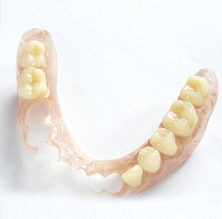 Valpast-Flexible-Dentures